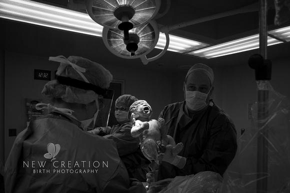 Hora Cedar Rapids C-Section Birth Photographer 0070